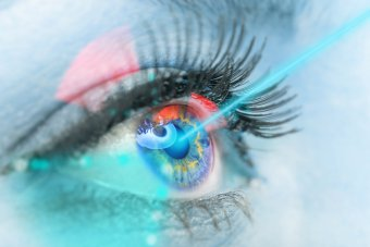 the course of laser vision correction procedure